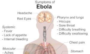 Ebola-virus-20140803165709mmmm